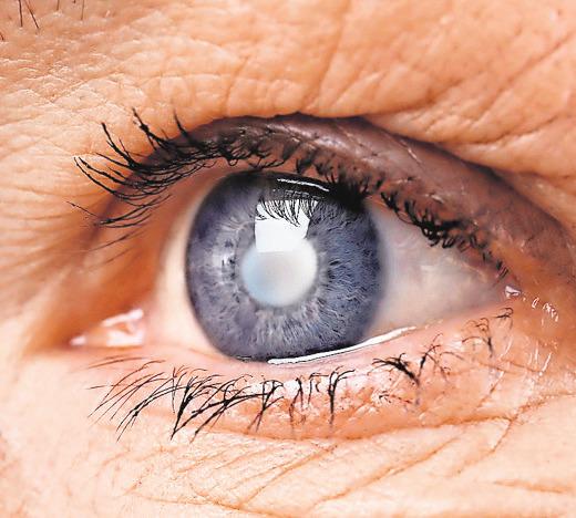 Der graue Star ist ein normaler Alterungsprozess, bei dem sich die Linse eintrübt, was das Sehen beeinträchtigt. FOTO: FOTOLIA