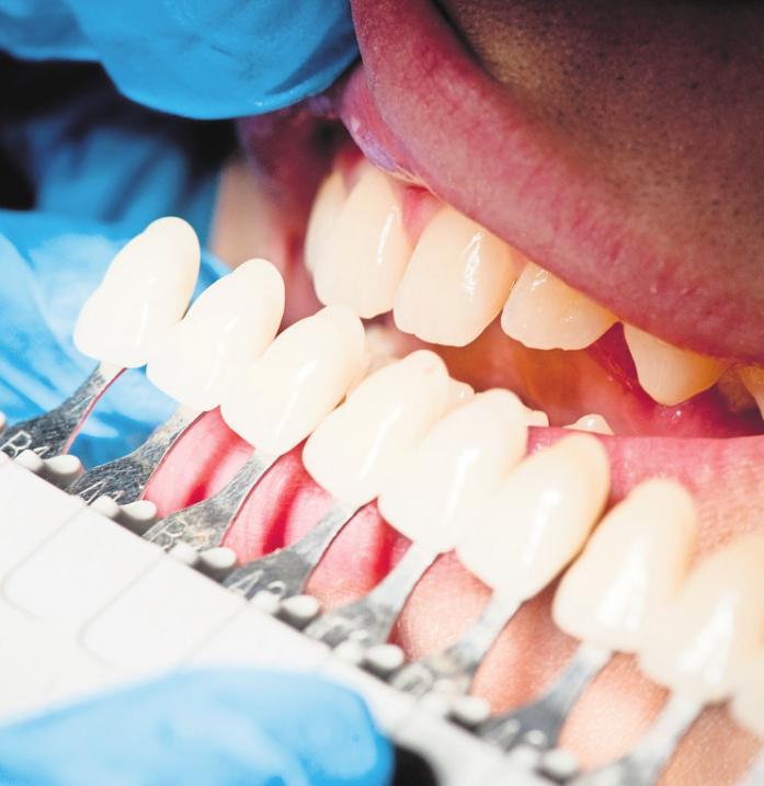 Was die Zahnpasta nicht schafft, kann ein Bleaching beim Zahnarzt wettmachen.FOTO: DPA