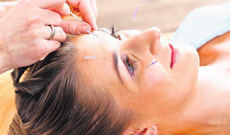 Rund 400 Punkte nutzt die traditionelle chinesische Medizin bei der Akupunktur. FOTOS: FOTOLIA