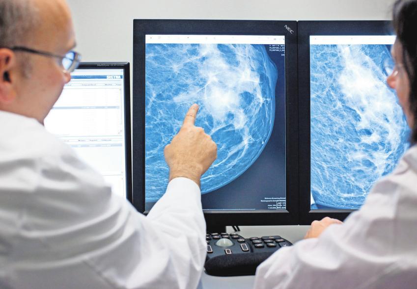 Mammographie-Screening: Eine Untersuchung hilft, Erkrankungen zu erkennen – die Nuklearmedizinische Gemeinschaftspraxis Celle hat dafür einen neuen Kernspintomographen angeschafft. DPA ARCHIV