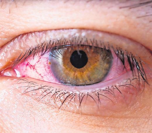 Beim grünen Star werden Sehnervfasern zerstört – oft weil der Augeninnendruck zu hoch ist.FOTO: FOTOLIA
