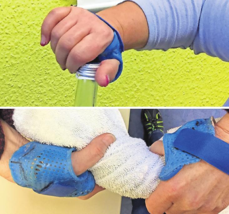 Ob beim Flasche öffnen oder Tuch auswringen: Mit der Orthese haben die Patienten wieder einen schmerzfreien Alltag. Fotos: MSB