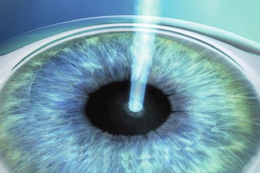 Bei den Augenlaserverfahren formt ein Excimerlaser das Hornhautgewebe innerhalb von Sekunden, um so die Fehlsichtigkeit auszugleichen.
