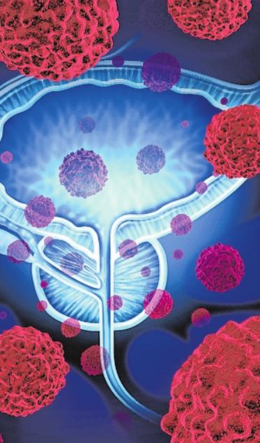 Bei einer Biopsie wird Gewebe entnommen und auf Krebszellen untersucht.FOTO: GETTY IMAGES