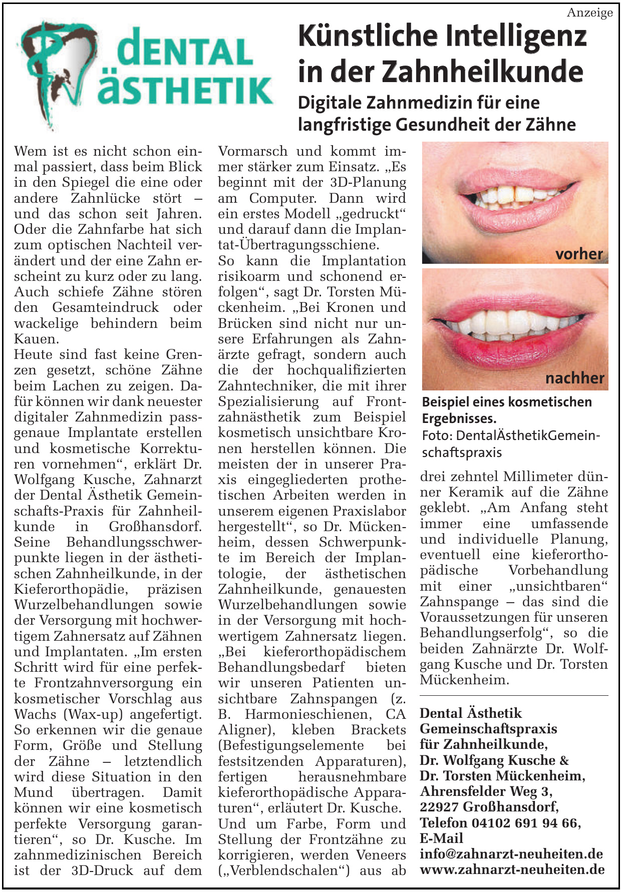 Dental-Ästhetik