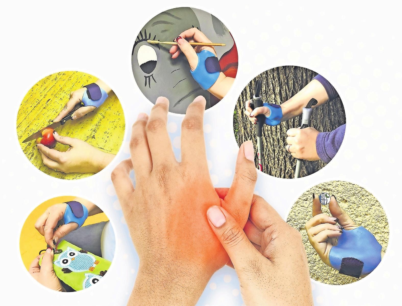 Schmerzen im Daumengelenk? Mit der neu entwickelten Orthese sind alltägliche Dinge wie Nähen, Schneiden, Malen und Greifen kein Problem mehr. Foto: MSB-Orthopädie-Technik