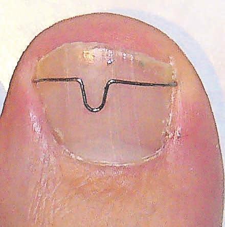 Mit einer Orthonyxiespange lässt sich ein eingewachsener Zehennagel meist beheben.