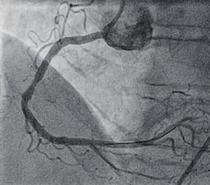 Bild 2: Blutfluss nach Ultraschallbehandlung und Stentimplantation wiederhergestellt