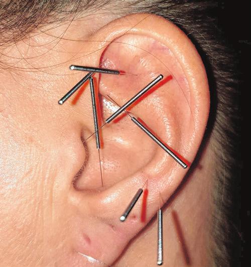 Die Ohrakupunktur hilft bei unterschiedlichsten Krankheitsbildern Foto: Reimers