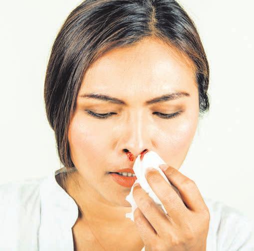 Wenn die Nase blutet, sollte der Kopf nach vorne gebeugt werden. Foto:Srisakorn Wonglakorn/123rf.com