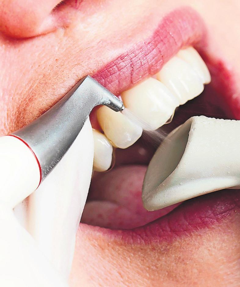 Die Zahnreinigung beugt vor. Foto: proDente/Peter J. Kierzkowski