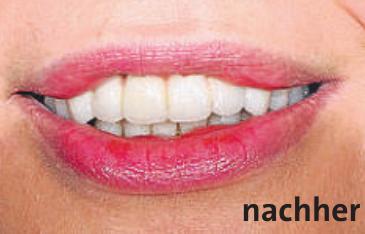 Künstliche Intelligenz in der Zahnheilkunde Image 2