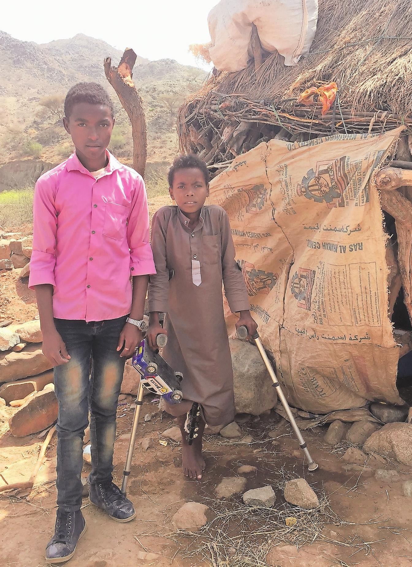 Opfer eines Luftangriffs wurden Ammar (15, l.) und sein Bruder Sami (13) aus Hajjah im Nordwesten Jemens, als sie 2018 an einer Hochzeitsgesellschaft teilnahmen. Ammar verlor seinen rechten Fuß, und auch Sami wurde schwer verletzt. Ihre Familie konnte sich keine Behandlung leisten; Save the Children übernahm die Kosten und sorgte für psychologische Betreuung.
