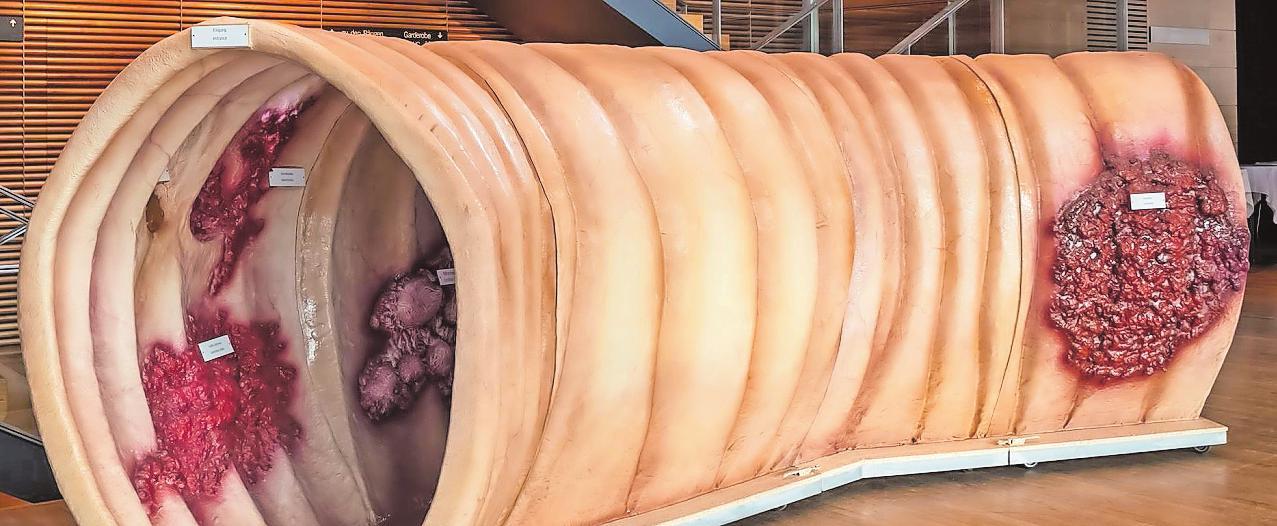 Sieben Meter lang ist das Modell eines Darms. FOTO: VERANSTALTER
