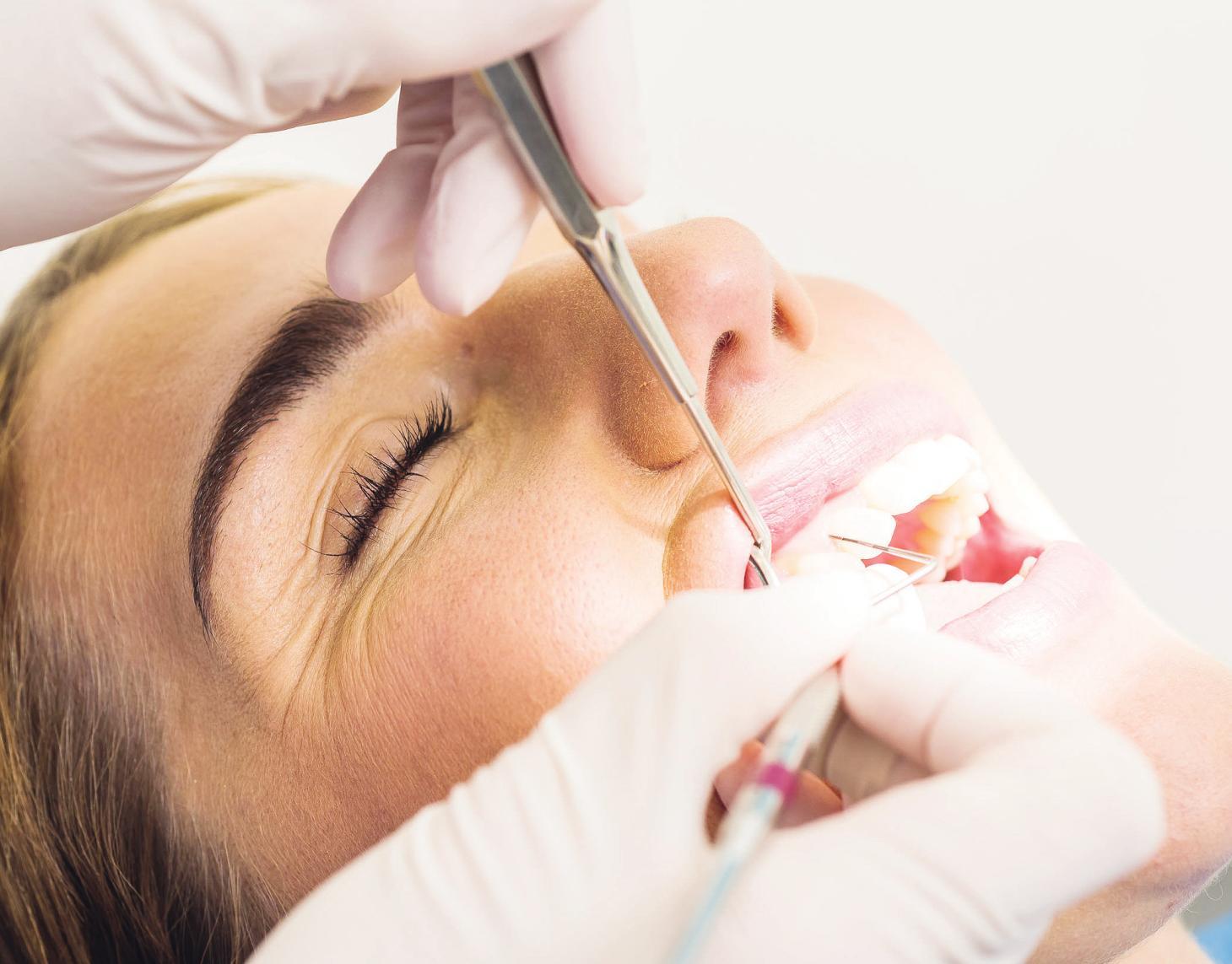 Mit einem PSI-Test misst der Zahnarzt die Tiefe der Taschen. Das ist der Bereich zwischen Zähnen und Zahnfleisch. Das Zahnfleisch entzündet sich schleichend und bleibt auch in diesem Zustand lange schmerzfreiFoto: proDente