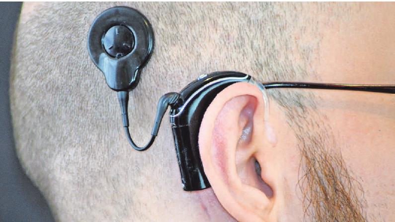 Ein Cochlea-Implantat ist eine Hörprothese, die auch Gehörlosen und Ertaubten das Hören wieder ermöglichen kann. Foto: Bernd/stock.adobe.com