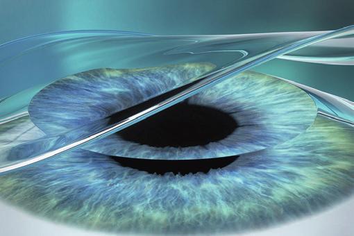 Nach dem Eingriff schützt eine Verbands-Kontaktlinse die Hornhaut, bis sich nach einigen Tagen die oberste Schicht neu gebildet hat.