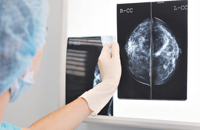 Ergebnisse einer Mammographie.   Fotos: adobe stock.com/PhotoPlus+