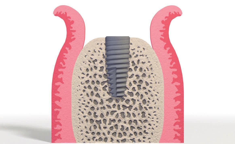 Implantat im Knochen. Fotoquelle: Strautmann