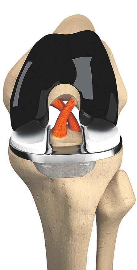 Die neue Knie-Tep ist dem Kniegelenk anatomisch optimal angepasst