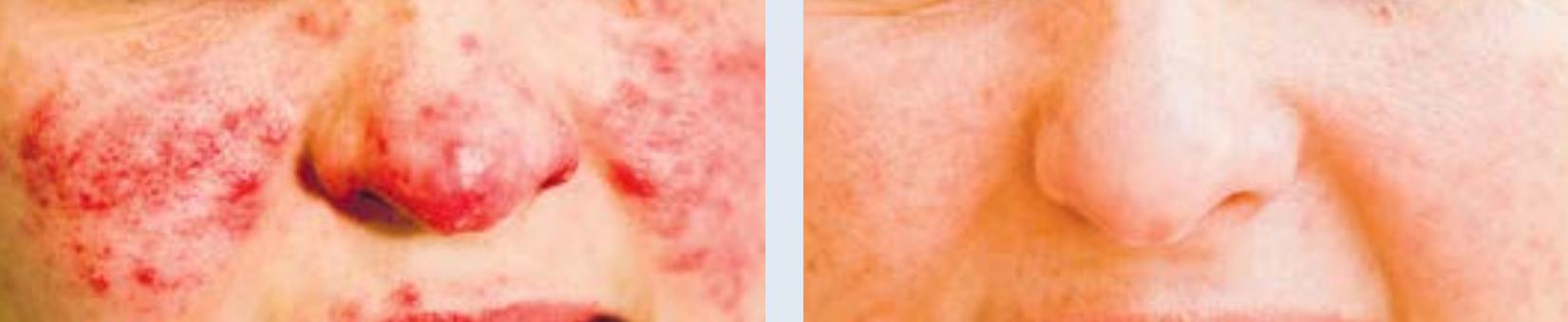 Eine schwere Rosacea vor und nach einer Laserbehandlung. Die Rötungen sowie entzündliche Pickel sind nach mehreren Sitzungen vollständig verschwunden.
