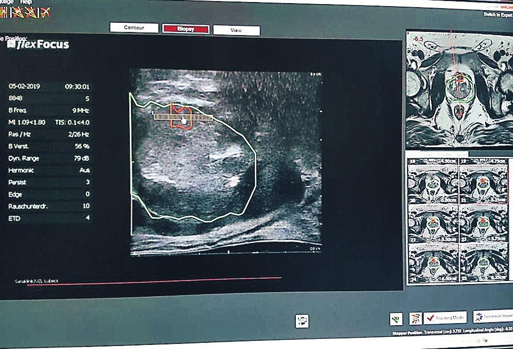 Mithilfe modernster 3-D-Technik können MRT-Bilder und die Ultraschall-Aufnahme fusioniert werden.
