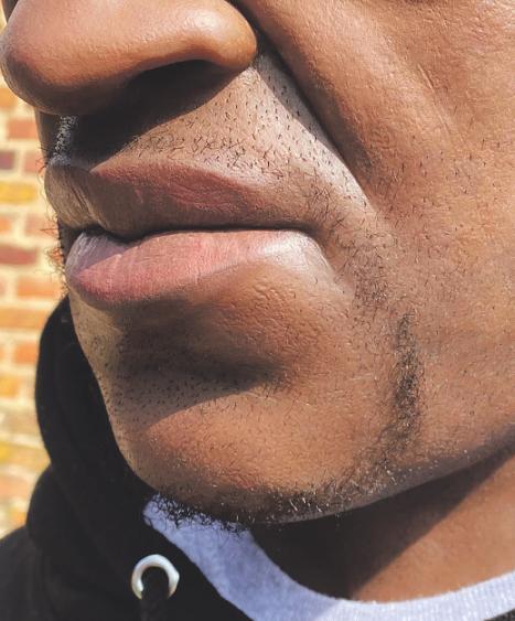 Einzelne Poren oder Male machen die Realitätstreue aus. Bild: zVg