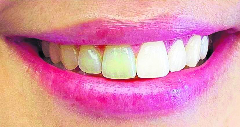 Für ein strahlendes, weißes Lächeln Image 3