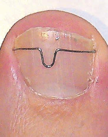 Ein eingewachsener Zehennagel ist schmerzhaft. Eine Nagelkorrekturspange, auch Orthonyxiespange genannt, kann Abhilfe schaffen. Das Podologiezentrum Behrens berät Betroffene ausführlich.