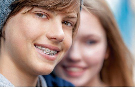 Mehr als jeder zweite Jugendliche hat eine Zahnspange. Aber aufgepasst! Schnell können sich bakterielle Belägeum die aufgeklebten Metallplättchen herum, unter den Drähten und in den Zahnzwischenräumen bilden. Damit Bakterien keine Karies oder Entzündungen auslösen, ist die richtige Pflege wichtig.