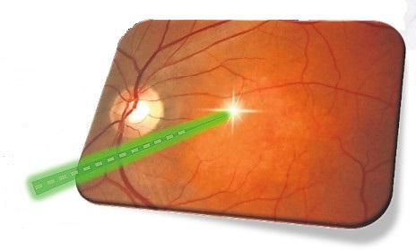 Die Makula wird mit energiearmem Laserlicht behandelt, um den Stoffwechsel der Netzhaut zu aktivieren.