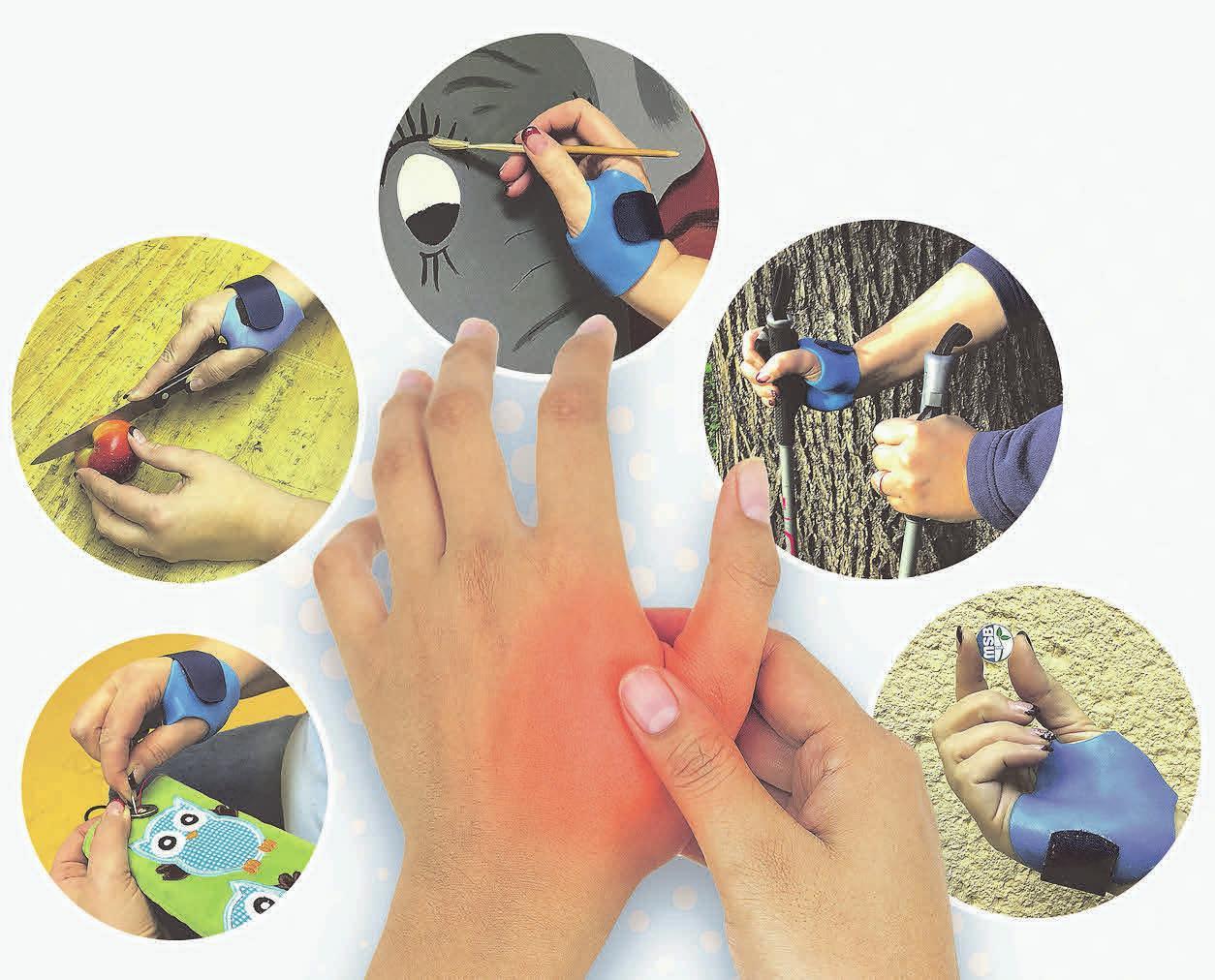 DIE NEU ENTWICKELTE Rhizarthrose Extensions Orthese (R.E.O.) kann Patienten zahlreiche Handgriffe im Alltag erleichtern. Foto: MSB-Orthopädie-Technik GmbH Leipzig