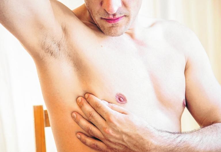 Brustkrebs bei Männern wird häufig spät erkannt.       FOTO: CHRISTIN KLOSE/TMN
