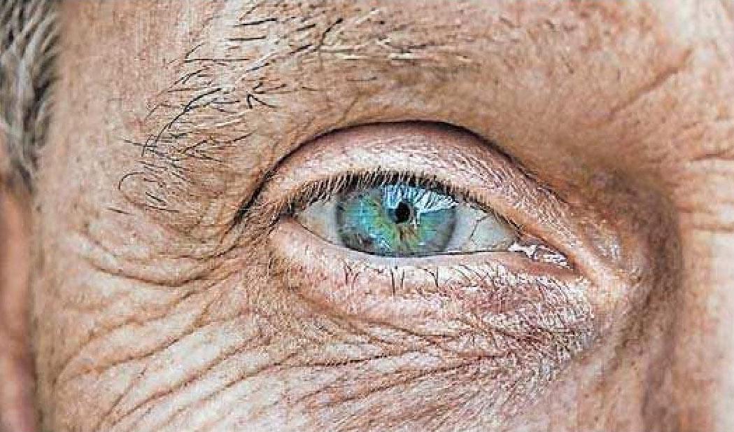 Häufiges Augenleiden im Alter: Grauer Star. FOTO: ANALOGICUS/PIXABAY